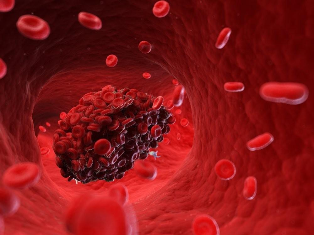 Tồn tại lỗ bầu dục đáng lo ngại là khi xuất hiện cục máu đông