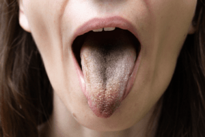 lưỡi bị đen