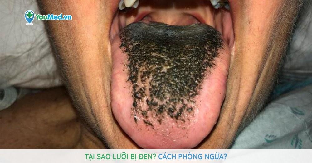 8 cách chăm sóc lưỡi bị đen đơn giản, hiệu quả