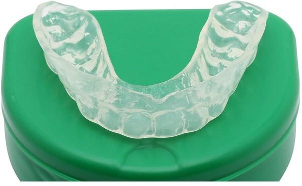 máng bảo vệ miệng cá nhân