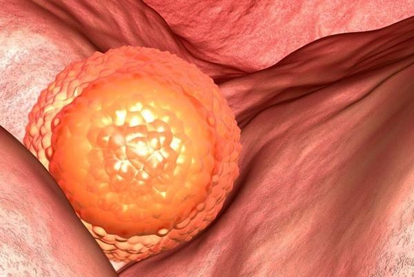 Phôi cấy sâu vào có thể sẽ rỉ một ít máu. Máu trộn lẫn với huyết trắng sẽ ra dịch âm đạo màu hồng