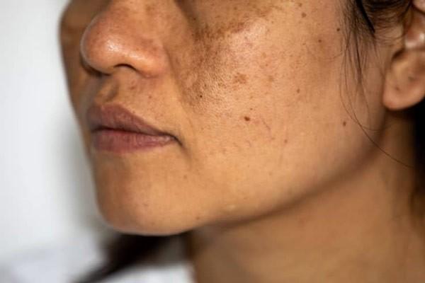 Tăng sắc tố da khi mang thai