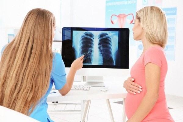 Nếu cần chụp X quang, mẹ hãy cho bác sĩ biết rằng mình đang hoặc nghi ngờ có mang thai