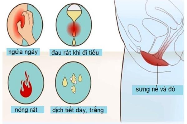 Các triệu chứng của nhiễm nấm âm đạo