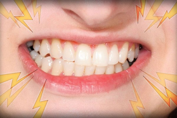 Khá nhiều người nghiến răng vì thói quen