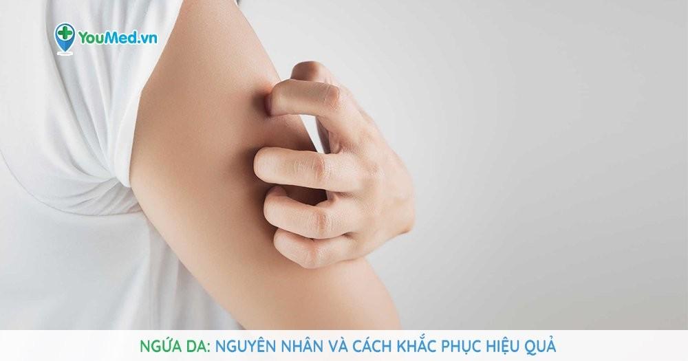 Ngứa da: Nguyên nhân và cách khắc phục hiệu quả