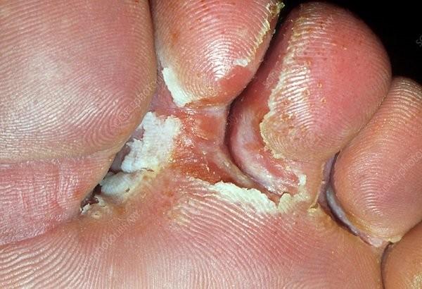 Nhiễm nấm bàn chân