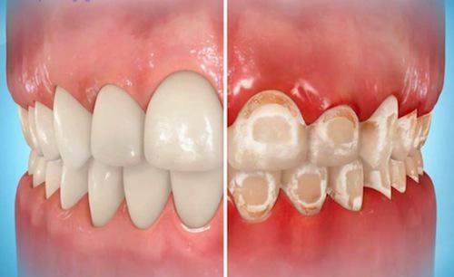 nguy cơ khi niềng răng 2
