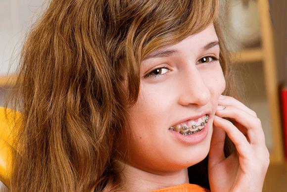 nguy cơ khi niềng răng 3