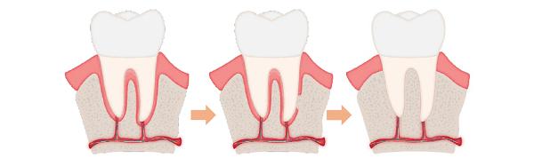 nguy cơ khi niềng răng 4