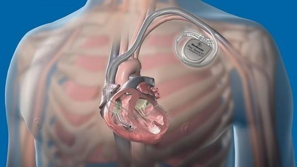 Máy tạo nhịp nhân tạo giúp điều chỉnh nhịp tim của bạn về bình thường.