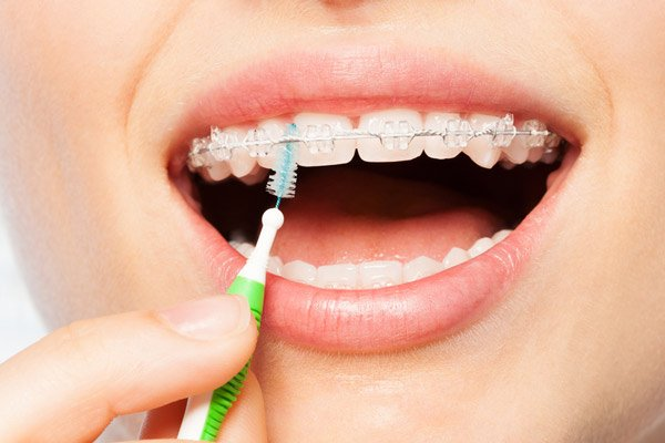 Cần vệ sinh răng miệng thật kỹ khi niềng