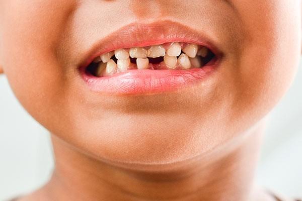 Sâu răng là bệnh lý thường gặp ở trẻ em