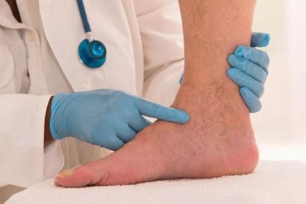 Phù chân do tắc mạch bạch huyết