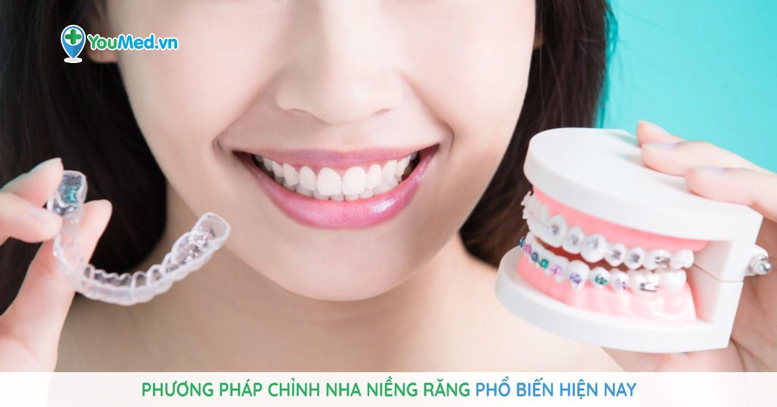 phuong-phap-chinh-nha-nieng-rang-pho-bien-hien-nay