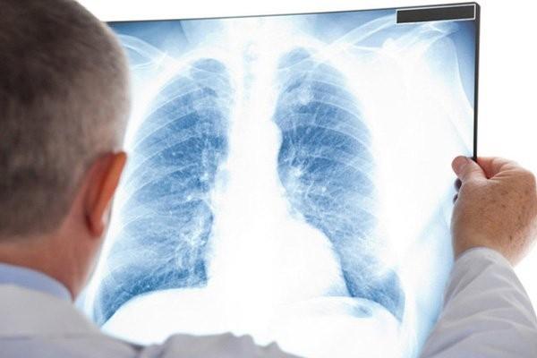 Nếu nghi ngờ tràn dịch màng phổi, bác sĩ sẽ tiến hành chụp X quang phổi