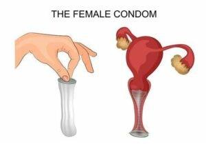 Bao cao su dành cho nữ