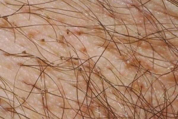 Sang thương vùng da rận mu và trứng ở vùng lông mu