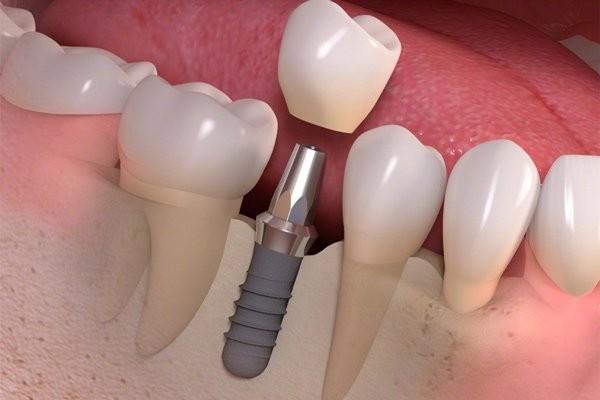 Implant nha khoa