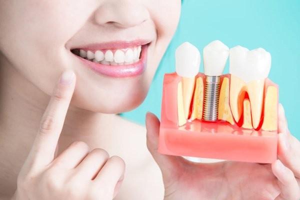 Implant có tính thẩm mỹ cao