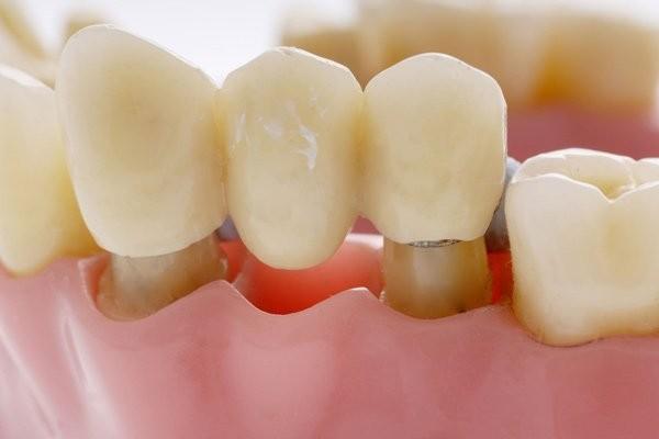 Cầu răng có thể thực hiện cho nhiều lứa tuổi