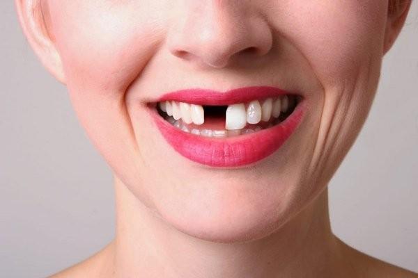 Tùy vào tình trạng mà bạn nên lựa chọn phương pháp làm răng giả phù hợp