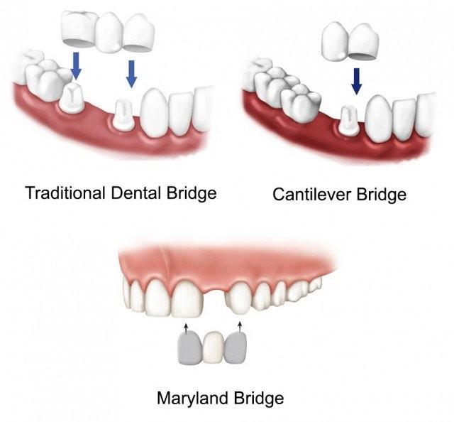 Các loại cầu răng theo cấu trúc