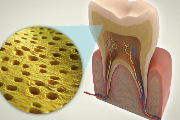 Các ống ngà nhỏ bị lộ có thể gây nhạy cảm răng
