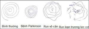 Chú thích: Các kiểu run khi được yêu cầu vẽ vòng trong xoắn ốc