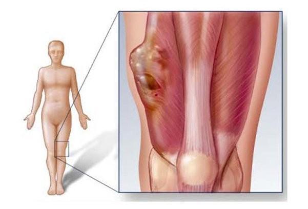 Sarcoma cơ vân biểu hiện trước tiên là khối u gồ lên bề mặt da