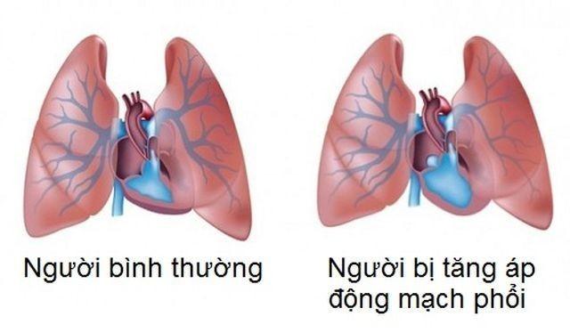 So sánh phổi người bình thường và phổi bệnh nhân bị tăng áp