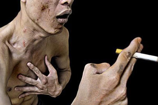 Hút thuốc lá có thể gây tăng áp động mạch phổi
