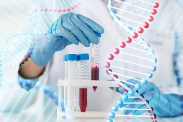 Xét nghiệm di truyền được tiến hành nếu gia đình bệnh nhân đã có người mắc bệnh