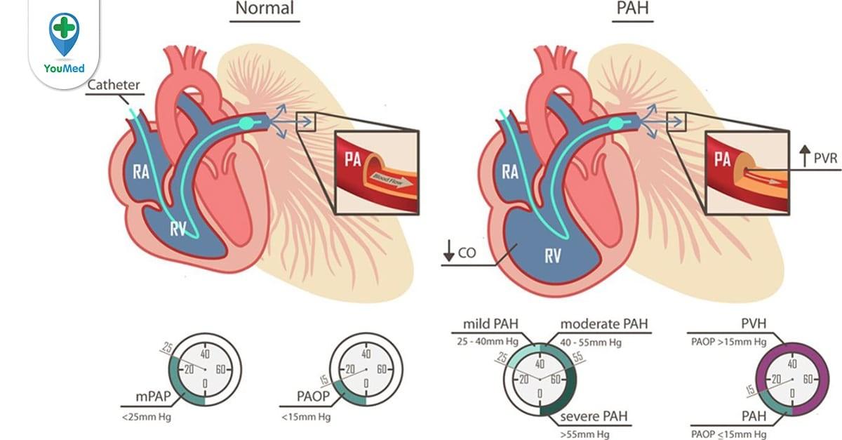 tăng áp phổi