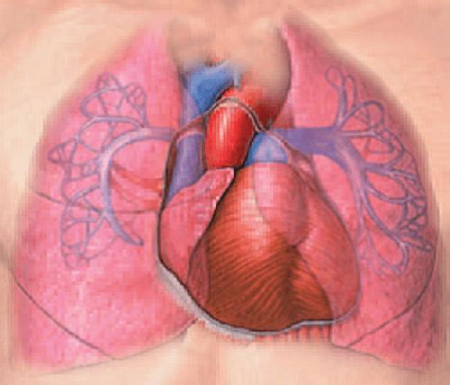 Động mạch phổi bị hẹp lại, kích thước tim phải lớn hơn