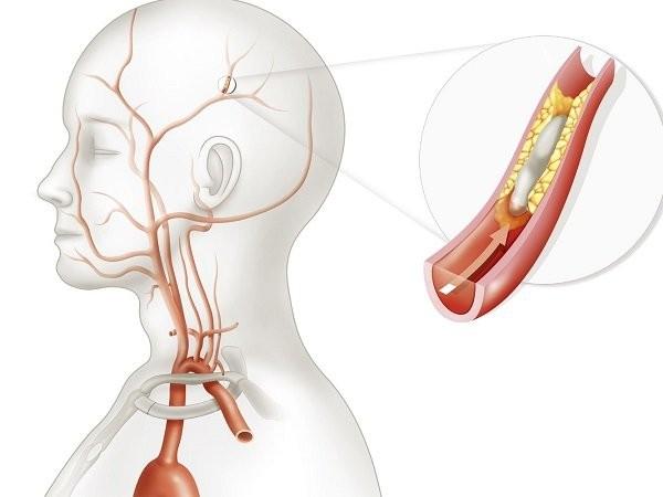tê lưỡi có thể do đột quỵ hoặc thiếu máu não
