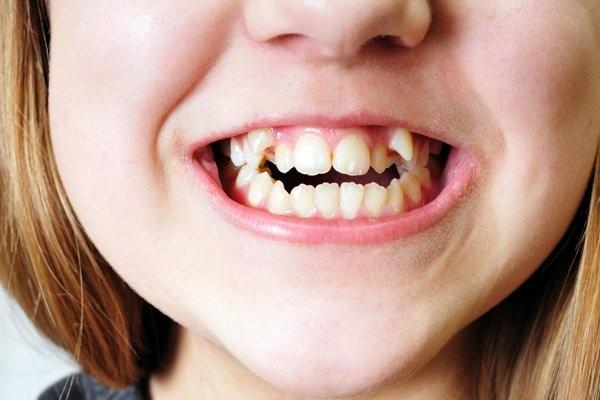 Răng của trẻ có thể bị ảnh hưởng