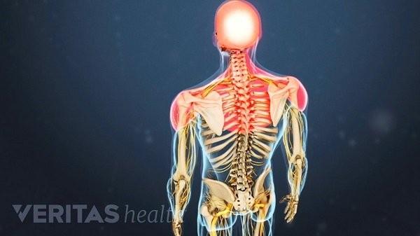 Thoái hóa cột sống cổ là bệnh lý mạn tính thường gặp