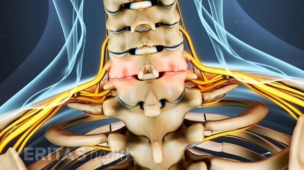 Thoái hóa cột sống cổ có thể gây chèn ép dây thần kinh và ống sống