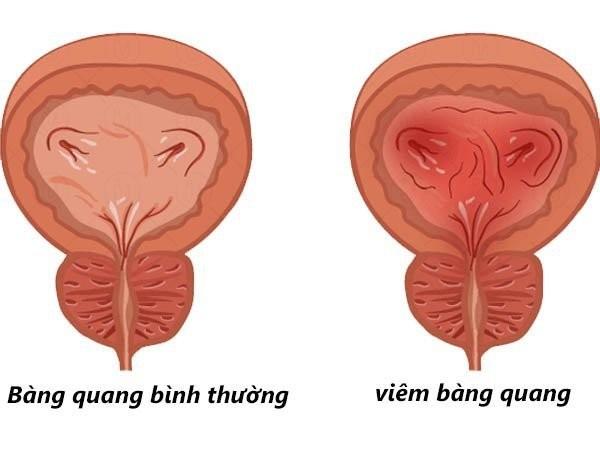 nhiễm trùng tiểu ở phụ nữ có thai