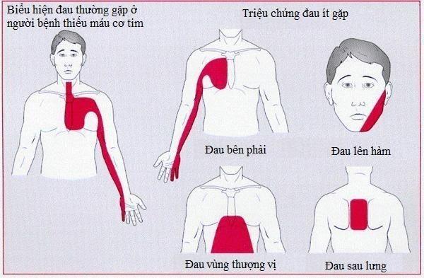 Các vị trí thường gặp của cơn đau thắt ngực