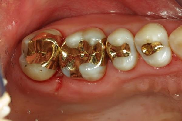 Miếng trám răng vàng