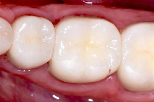 Miếng trám bằng vật liệu giống màu răng composite