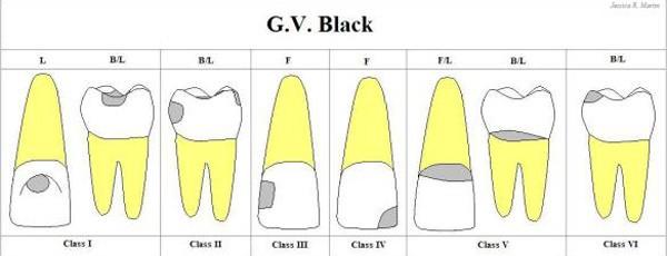 Phân loại xoang trám theo Greene Vardiman Black