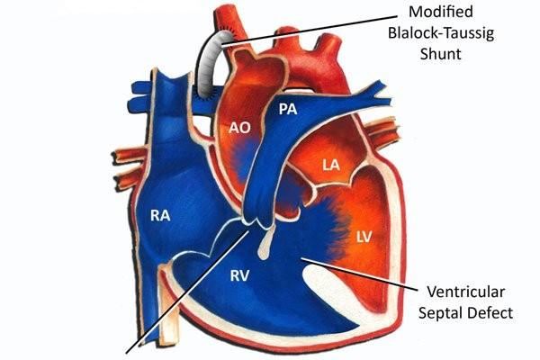 Ống nối (shunt) được gắn giữa động mạch chủ (đỏ) và động mạch phổi (xanh)