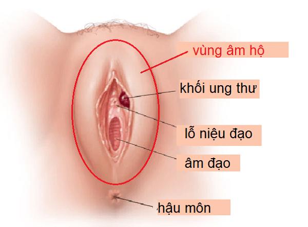 Hình minh họa khối ung thư