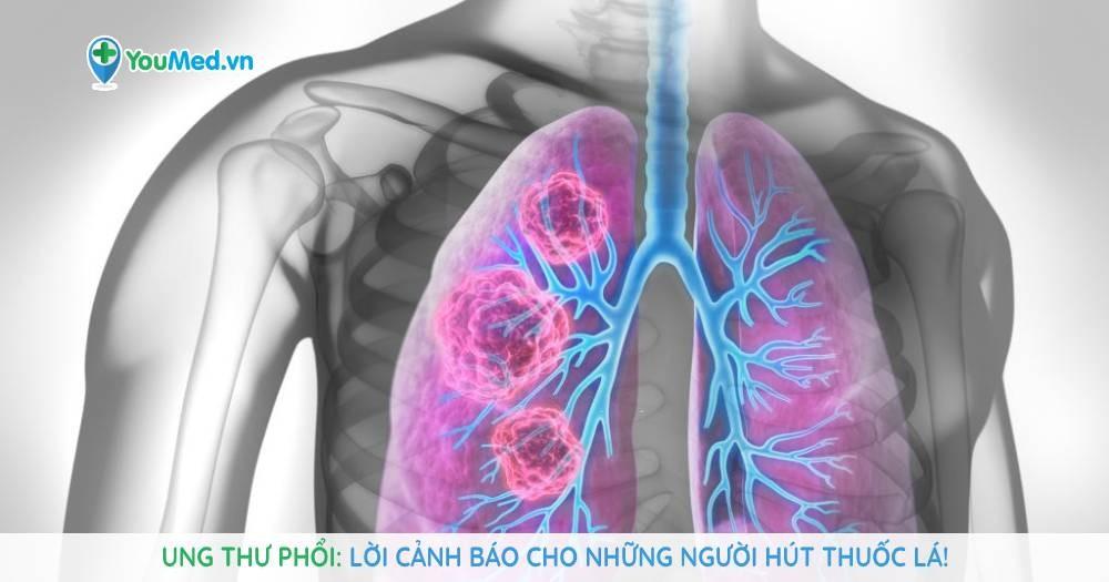 Ung thư phổi: Lời cảnh báo cho những người hút thuốc lá!