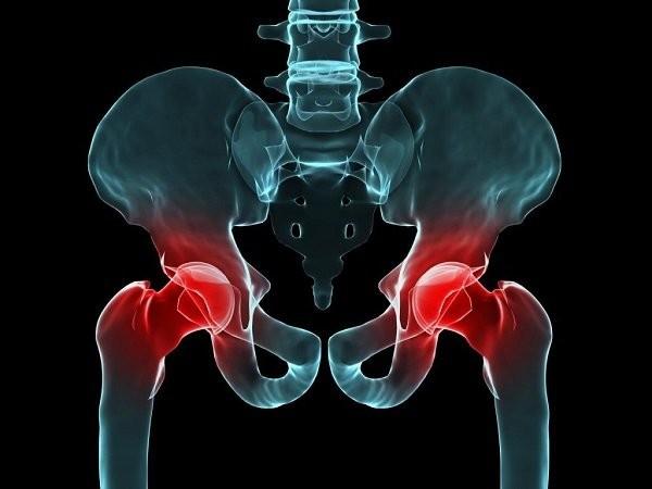 Viêm khớp có thể ảnh hưởng lên bất cứ khớp nào của cơ thể