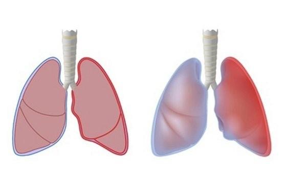 Màng phổi bình thường bên Trái, màng phổi bị viêm bên Phải