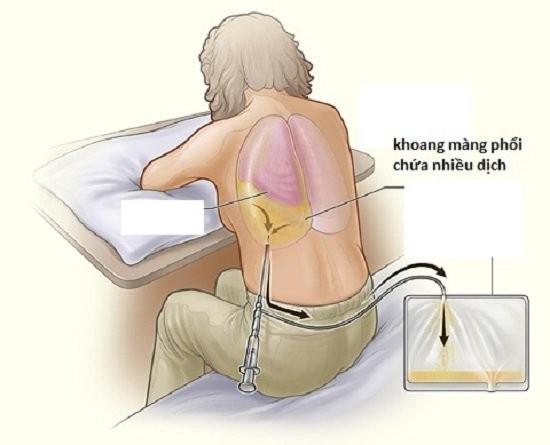 Viêm màng phổi: